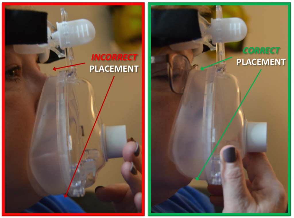 Figure 1: Placement of the mask to ensure proper fit