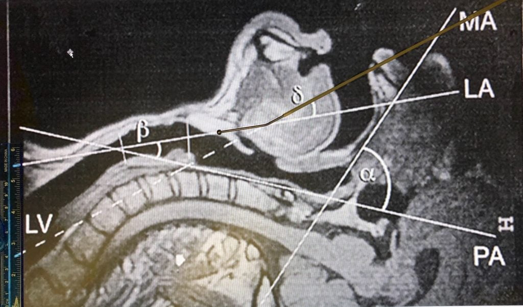 Fig. 2. AIROD® aligned perfectly with the line of vision (LV) with the head in simple extension. Transition to the laryngeal axis (LA) is easy due to the specialized 20-degree tip.
